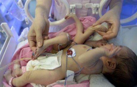 4 Ayaklı Ve 4 Elli Bebek Doğdu