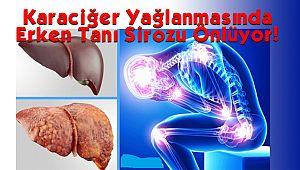 Karaciğer Yağlanmasında Erken Tanı Sirozu Önlüyor!
