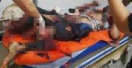 Suriyeliler Bomba İmal Ederken Ellerinde Patladı