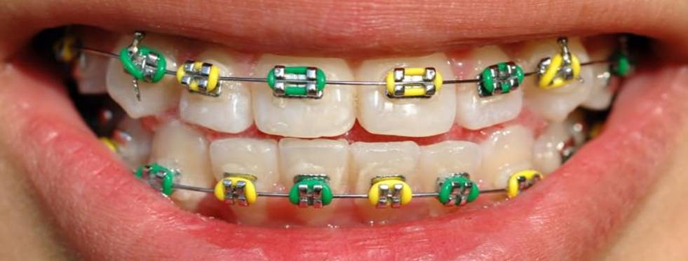 Çocuklarda Diş Teli Tedavisi