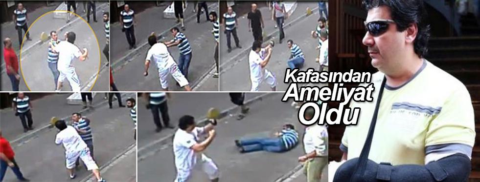 Aksaray Esnafını Döven Turist Kafasından Ameliyat Edildi